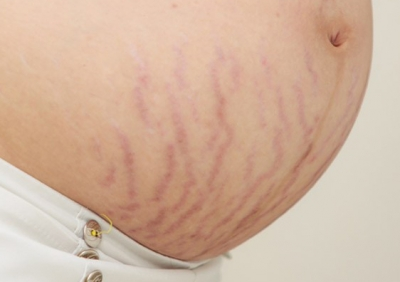 Stretch Marks Creams during pregnancy