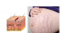 Stretch marks during pregnancy